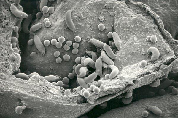 Смородиновый почечный клещ - переносчик махровости черной смородины под микроскопом